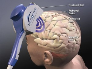 tms-therapy-diagram (1)