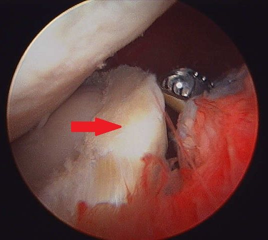 BEFORE Large prolapsed meniscal tear.