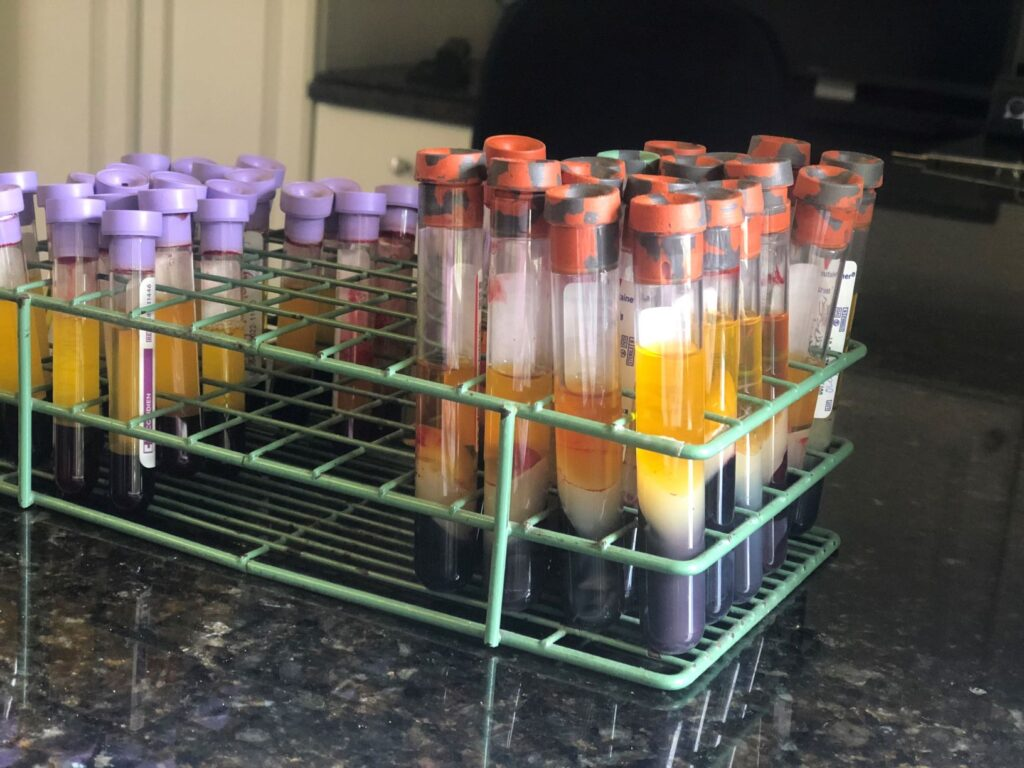Dr. Heidmann runs a blood panel to test for abnormal elevations in the enzymes creatine kinase and aspartate transaminase.