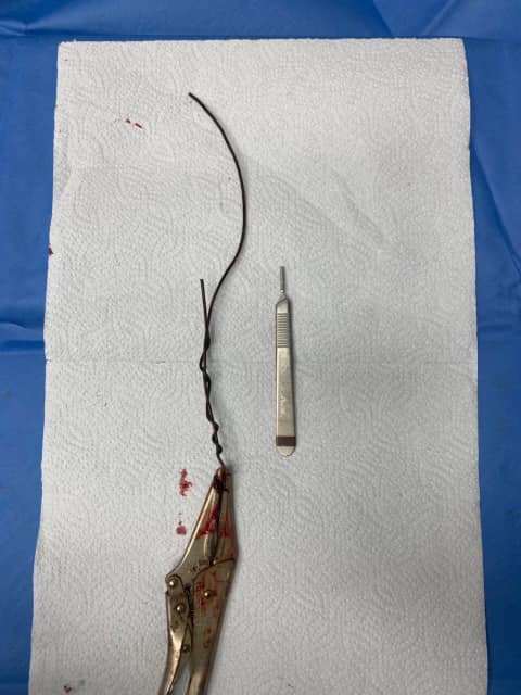 Wire removed from zekes leg post-surgery. Palm Beach Equine Clinic Rescue Patient Success Story