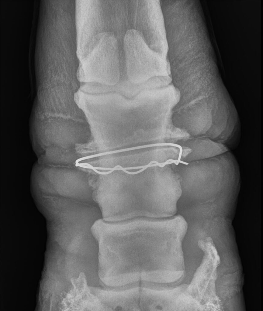 Posterior radiograph view of Zeke by Palm Beach Equine Clinic showing wire deeply embedded into pastern bone.