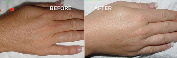 hair removal lafayette