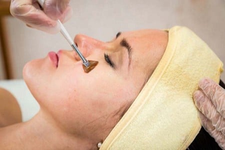 CHEMICAL PEELS West Palm Beach Gardens Florida