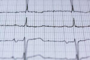 EKG results