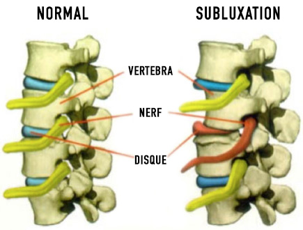 best vertebral subluxation care in france - what is a subluxation fr - WHAT IS A SUBLUXATION?