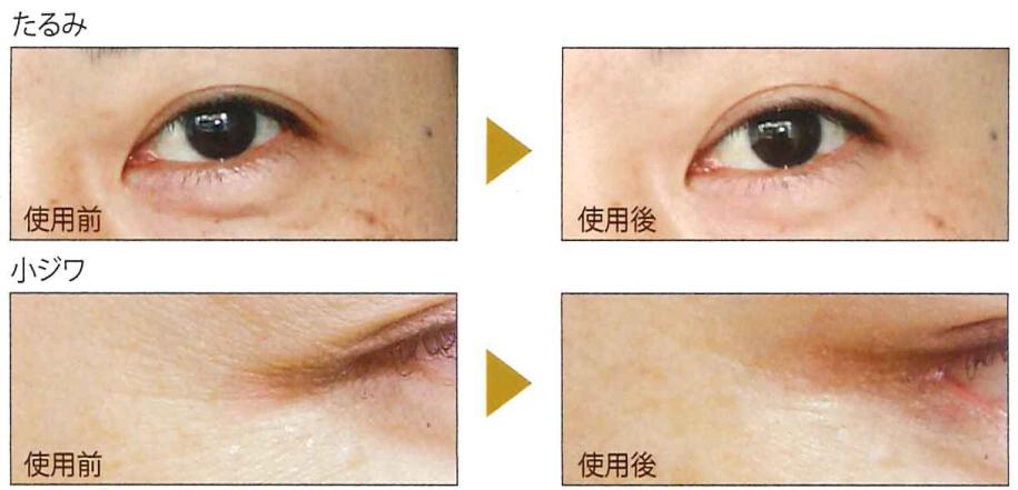 EyeCareEGEX - Before/After