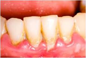 Periodontal Disease Picture