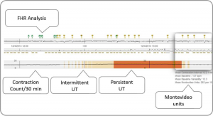 Figure 2. PeriCALM Patterns display showing the analysis related to uterine tachysystole.