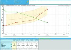 EFM Education: PeriCALM Curve Labor Progress Analsysis Software