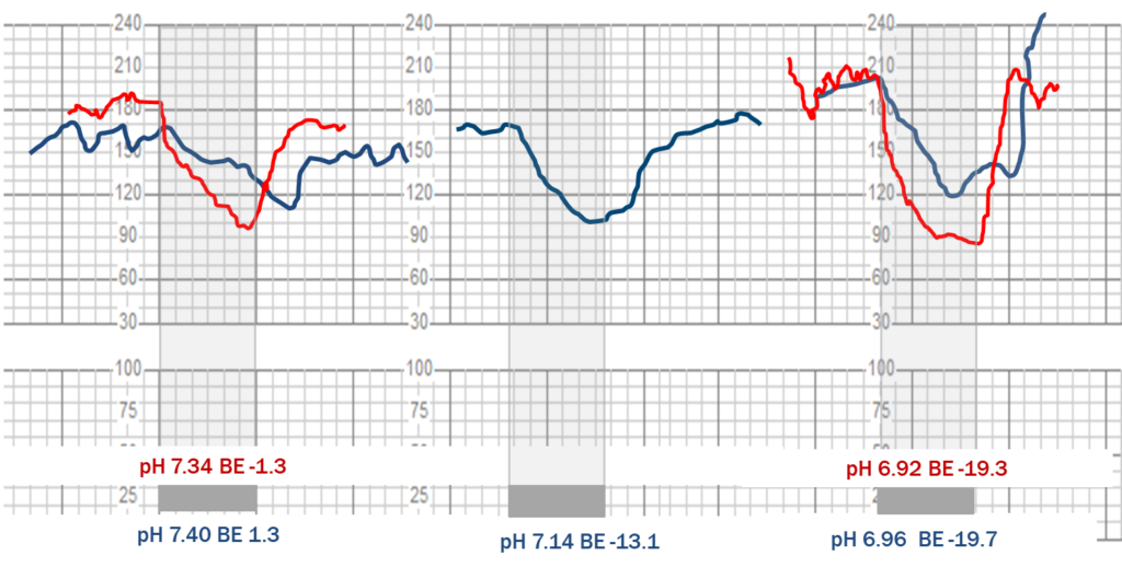 Superimposed decelerations from uterine artery compression (in blue) and cord compression (in red).