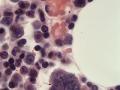 Megakaryocyte & erythrophage (feline, FIP, H&E)