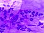 Porcupine cytology