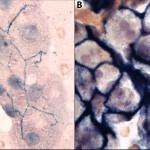ALP cytochem liver