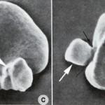 Heinz body under electron microscope