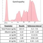 Polyclonal gammopathy electrophoretogram