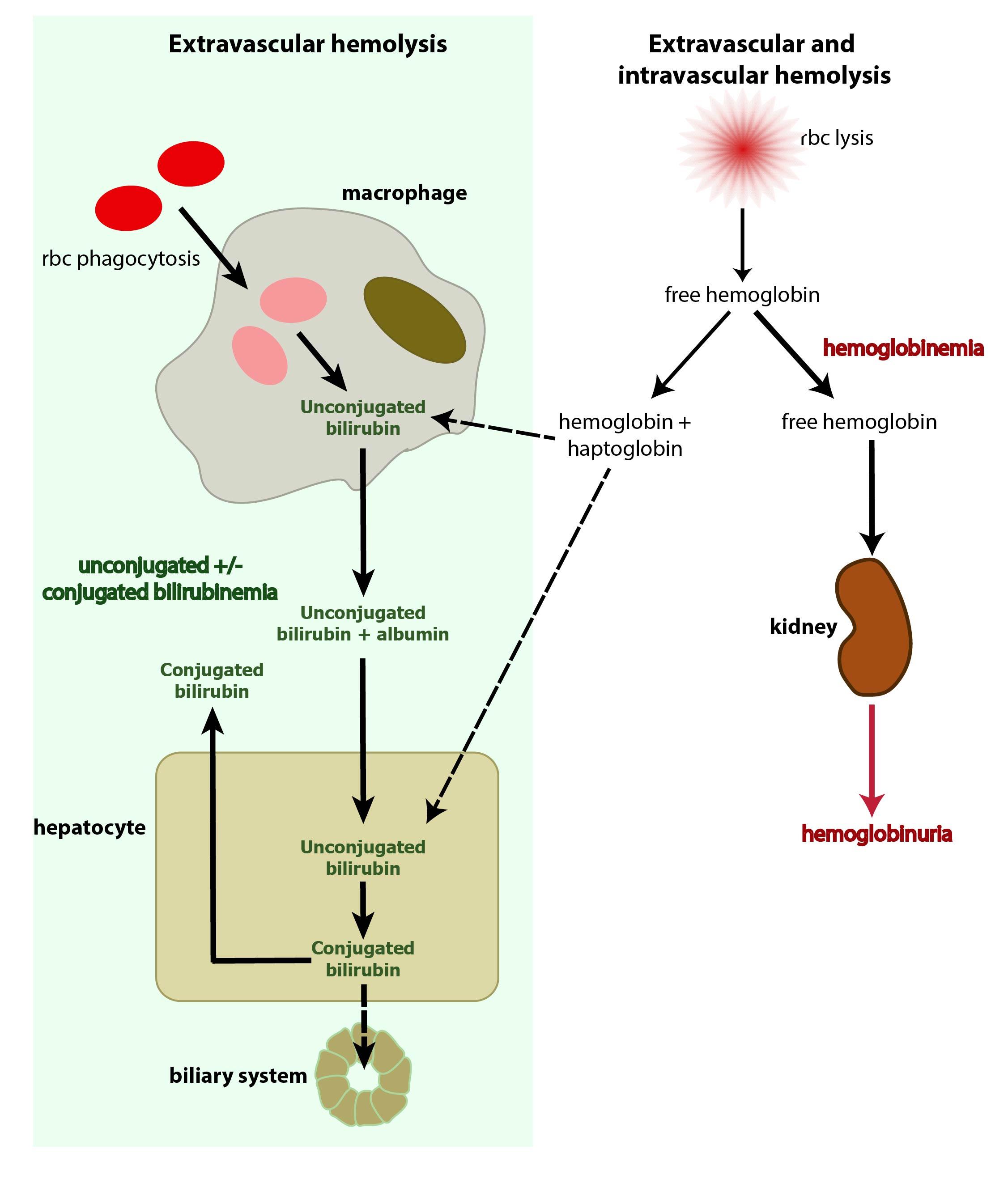 bilirubin hemolysis