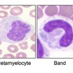 Neutrophil stages