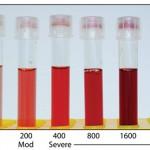 Hemolysis tubes