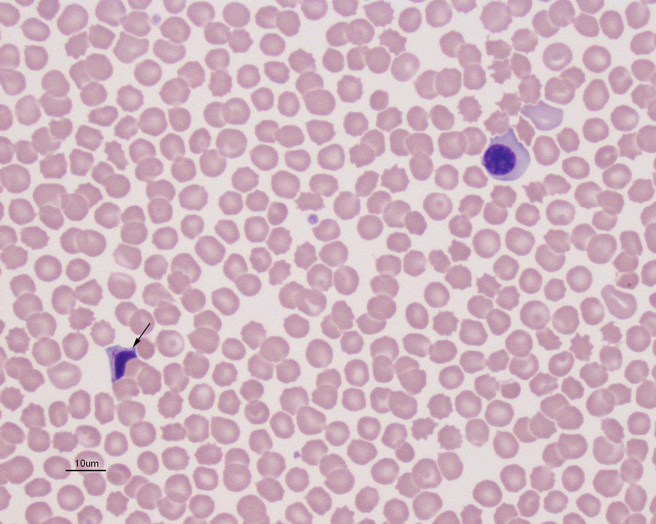 nrbc apoptotic