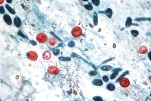 Pool Pathogens