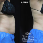 patient before and after results with CoolSculpting at Contemporary Plastic Surgery