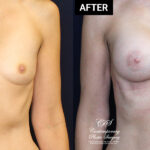 breast augmentation mammoplasty patient results at Contemporary Plastic Surgery