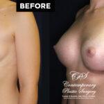 breast augmentation 11430