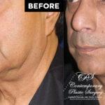 male face lift patient