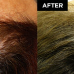 hair restoration patient before and after