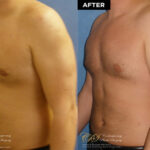 male body contouring before and after