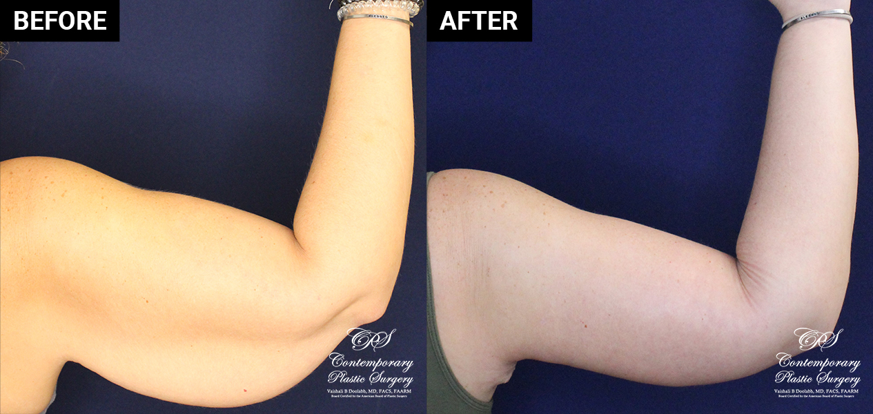 Arm lift patient results at Contemporary Plastic Surgery