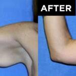 patient arm before arm lift procedure