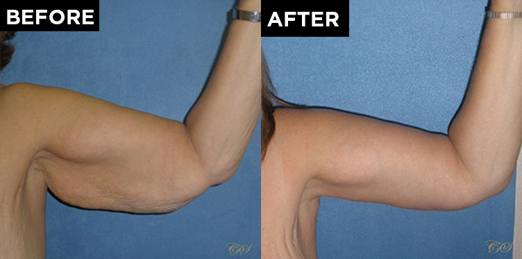 patient arm before & after arm lift