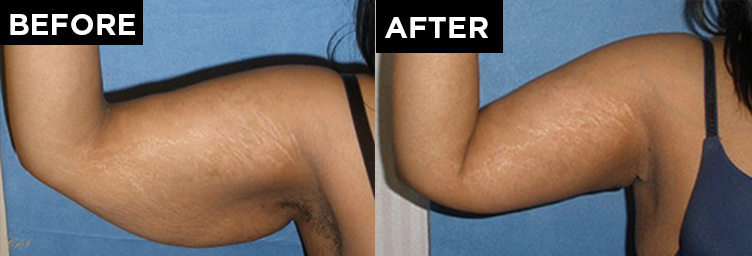 patient arm before and after arm lift procedure