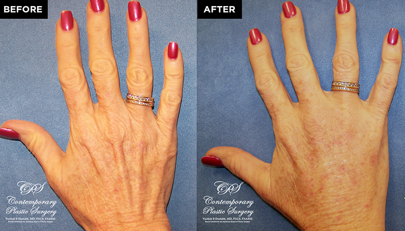 patient results before & after Radiesse injections at Contemporary Plastic Surgery