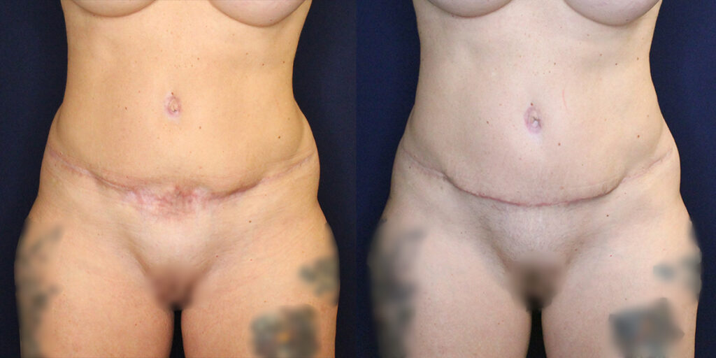Patient 16836's results from a scar revision with fat transfer procedure at Contemporary Plastic Surgery