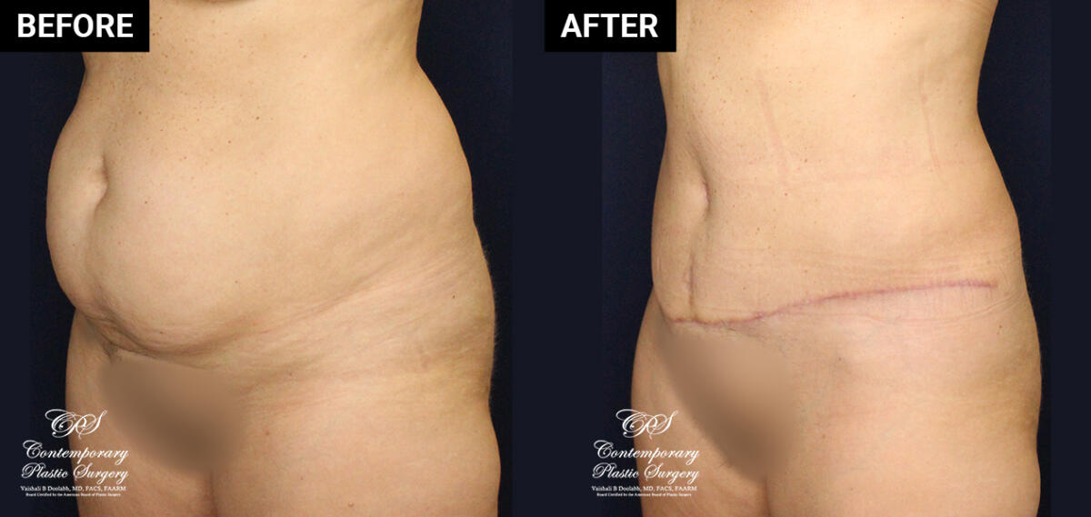 Tummy tuck patient surgery results at Contemporary Plastic Surgery