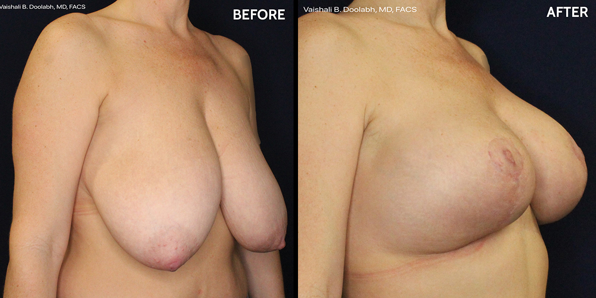 breast lift and augmentation