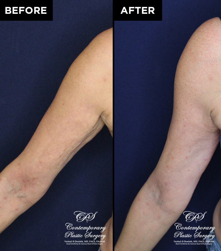 patient before & after Radiesse injections at Contemporary Plastic Surgery