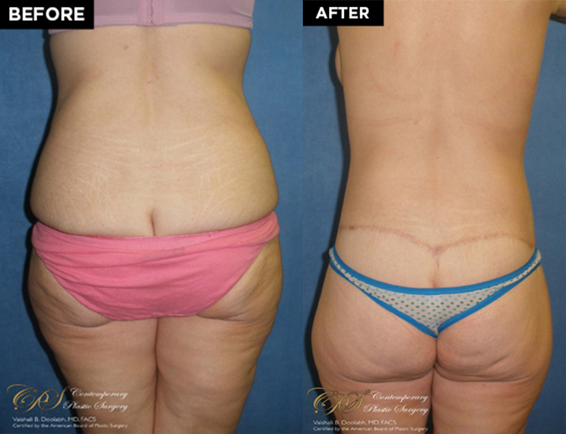 lower body lift patient before and after results at Contemporary Plastic Surgery