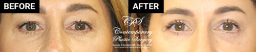 Eyelid surgery patient results at Contemporary Plastic Surgery