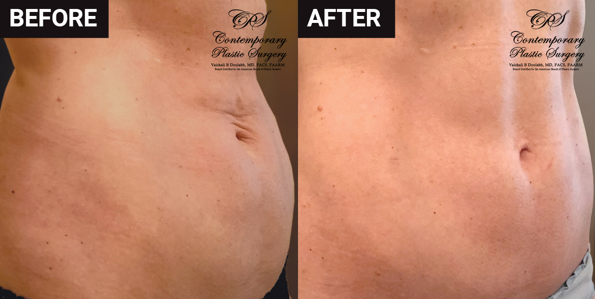 liposuction and skin tightening before and after results at Contemporary Plastic Surgery