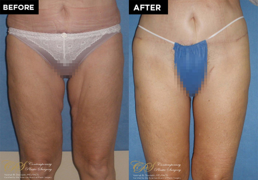 thigh lift patient before and after