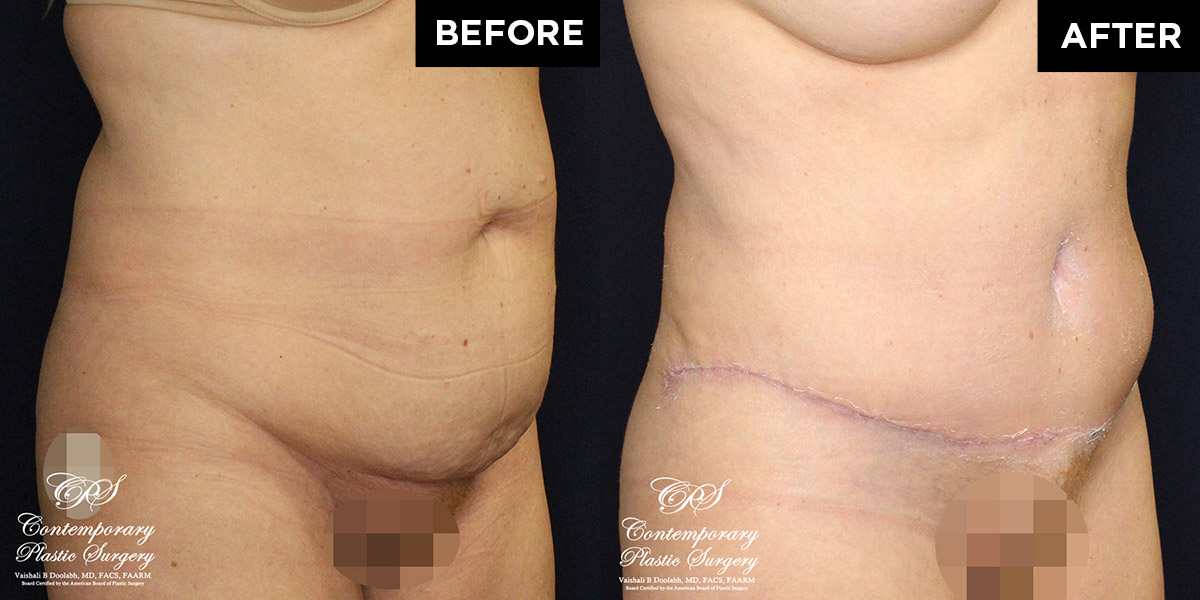 tummy tuck abdominoplasty patient before