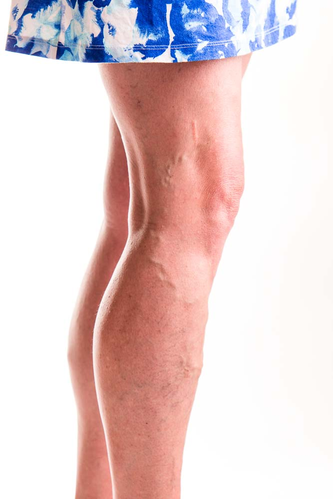 Spider Vein Treatment | Scottsdale Arizona Spectrum Dermatology