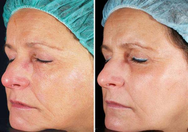 eMatrix Laser Resurfacing | Spectrum Dermatology, Scottsdale, AZ