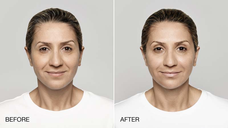 Restylane Injections | Spectrum Dermatology, Scottsdale AZ