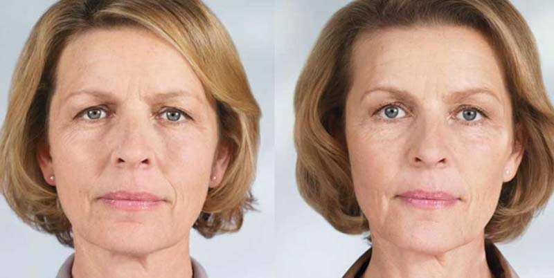 Sculptra | Spectrum Dermatology, Scottsdale, AZ