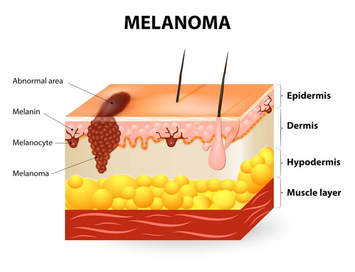 Melanoma Skin Cancer Treatment | Spectrum Dermatology, Scottsdale, Arizona