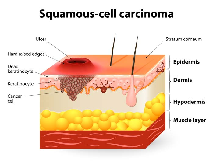 Squamous Cell Skin Cancer Treatment | Spectrum Dermatology, Scottsdale, Arizona